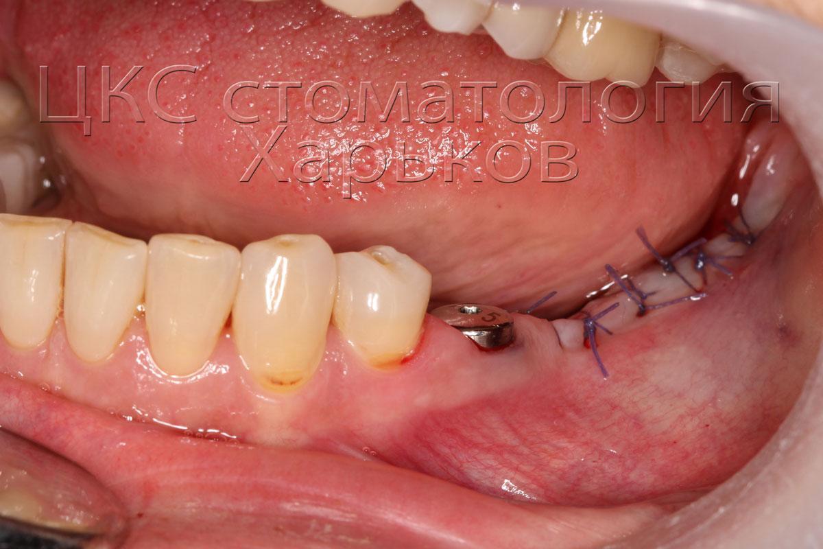 десна после проведения имплантации фото
