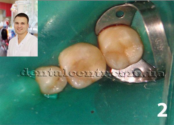проведение реставрации зубов фото