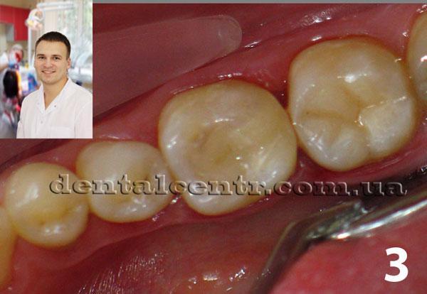 финальный вид реставрации зубов фото