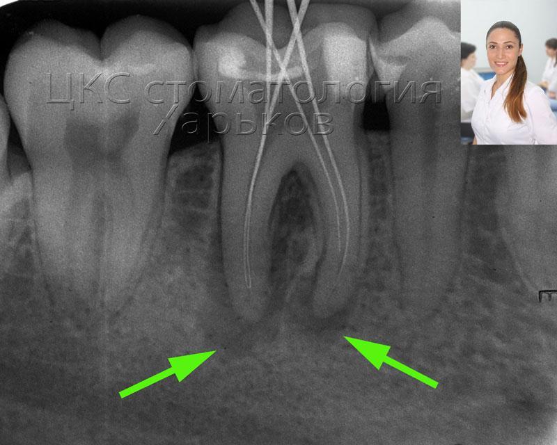 киста зуба, хронический периодонтит