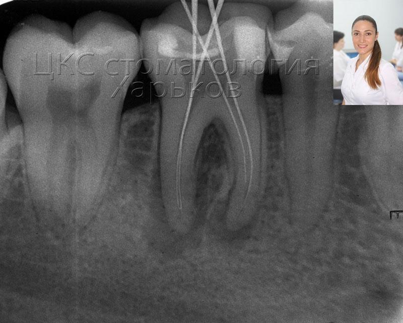 диагностика длины каналов рентген