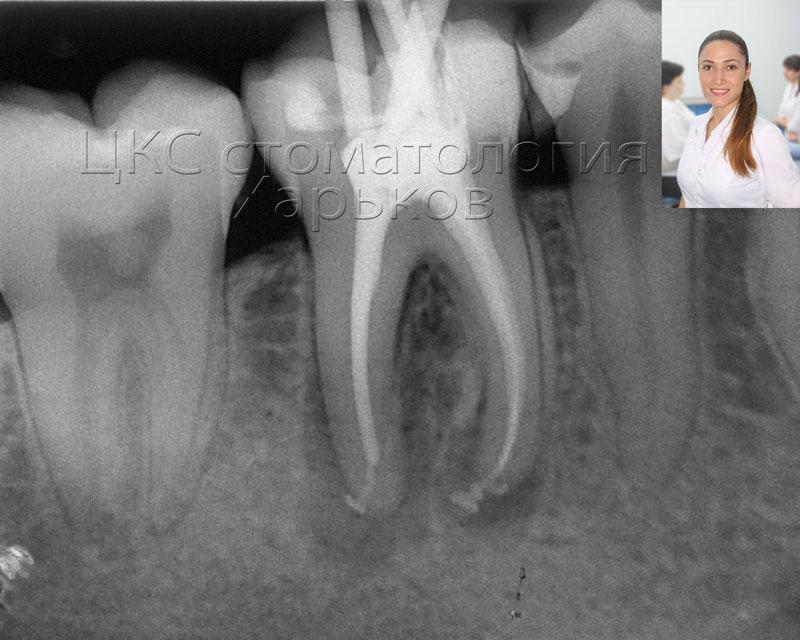 После излечения кисты зуба