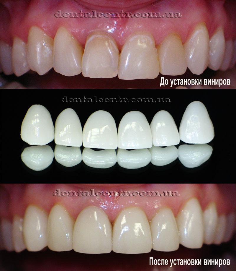 виниры на 4 передних зуба