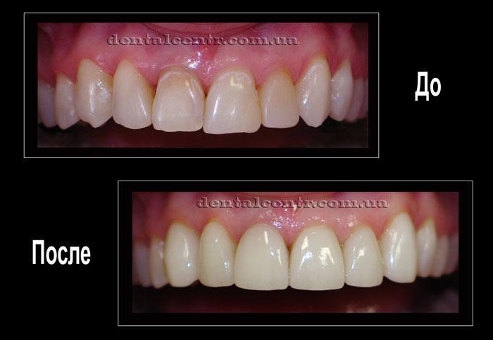 Фото зубов до и после установки керамических виниров