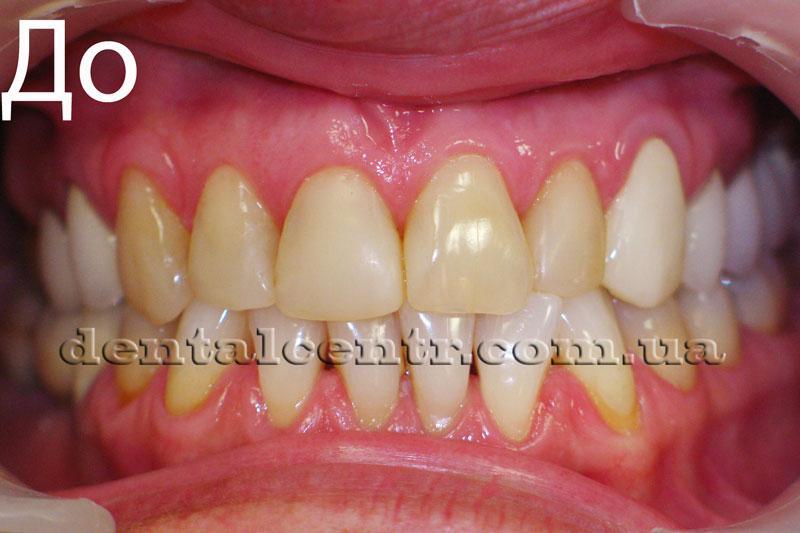 Фотография зубов пациента до установки керамических виниров