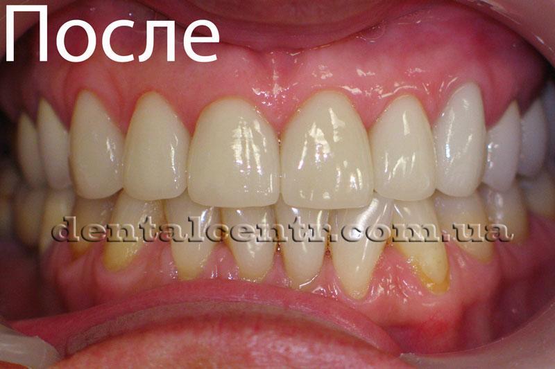Фотография зубов пациента после установки керамических виниров