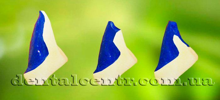Керамические виниры ,оковая проекция