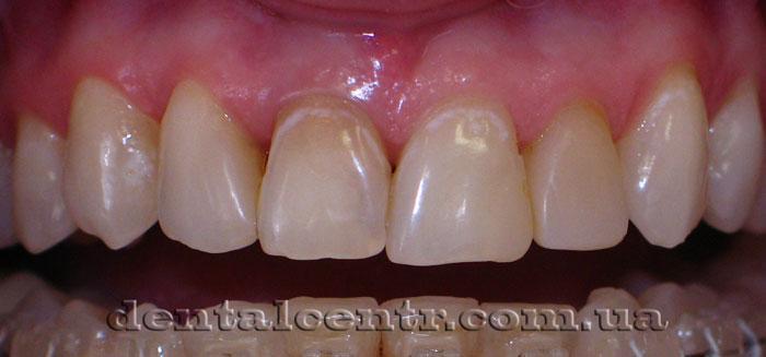 Фото зубов, исходная ситуация