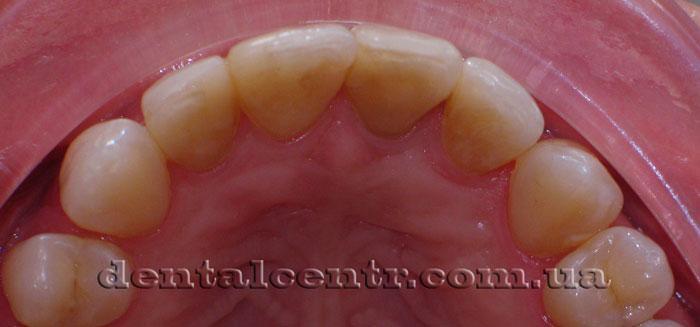 Внутренняя (небная) поверхность зубов фото