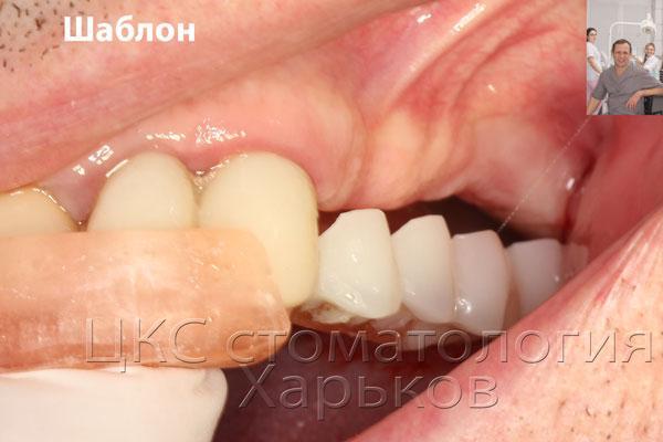 хирургический шаблон фиксирован к зубам