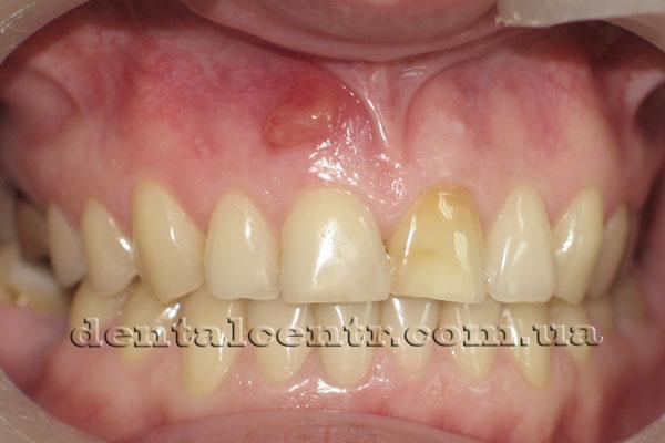 свищ в области корня зуба фото
