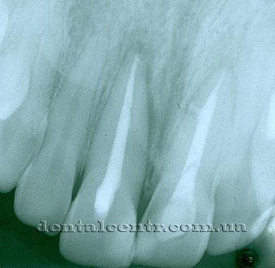 качественная пломбировка канала рентгенограмма