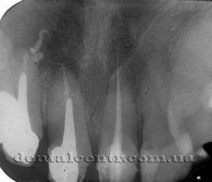 Рентгенограмма через полгода после лечения свища