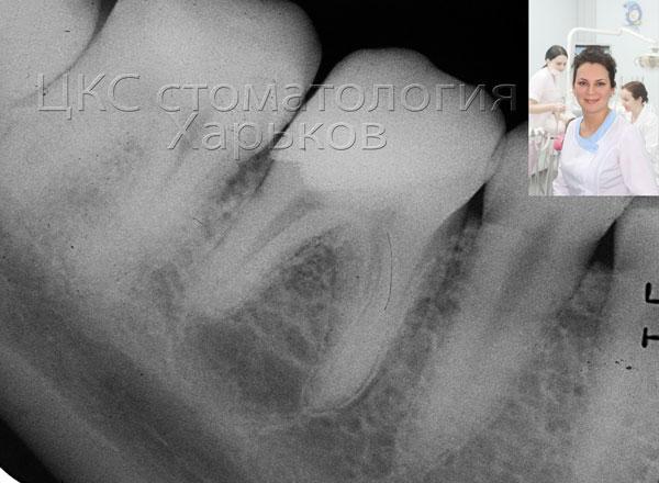 хронический пульпит зуба фото