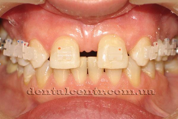 Большая диастема и тремы между зубами фото