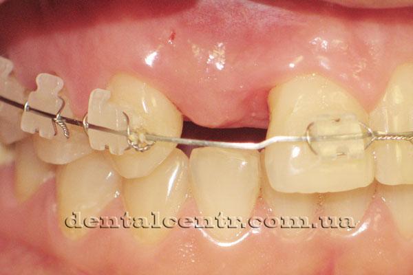 Фото зубов после первого этапа двухэтапной зубной имплантации