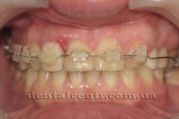 На зубах фиксирована брекет система фото