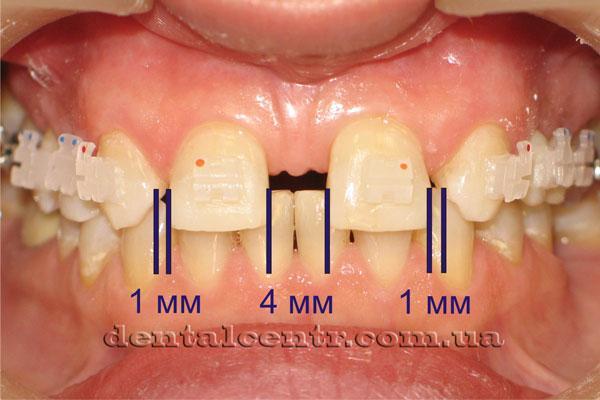 Планирования лечения ортодонтия плюс имплантология фото