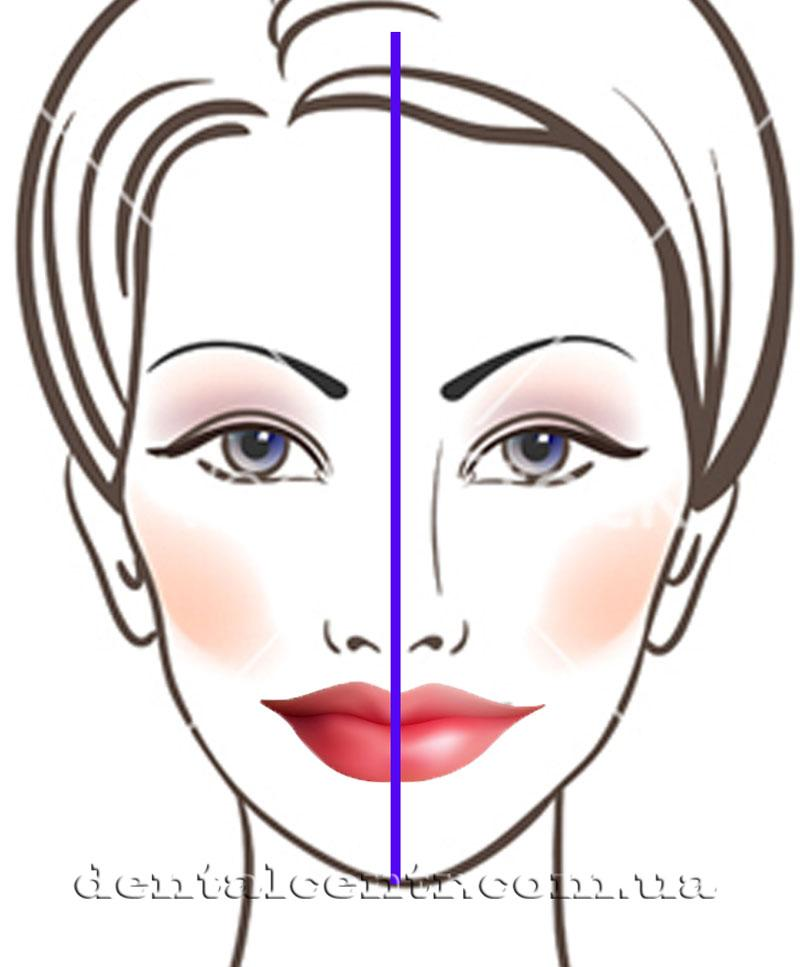 рисунок лица с нанесёнными линиями ориентир для ортодонта
