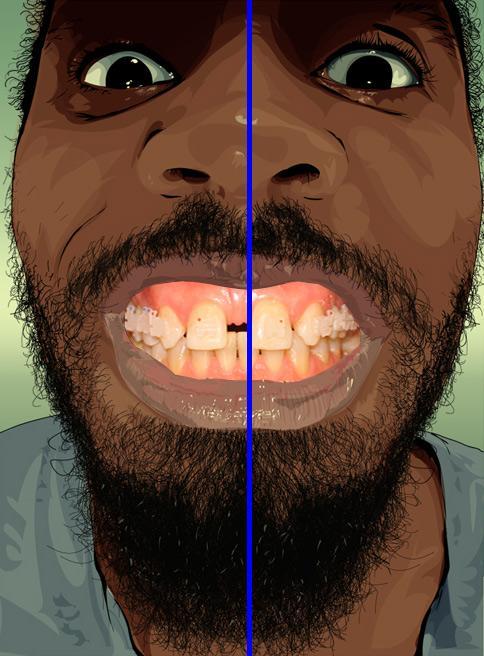 Рисунок лица как ориентир для ортодонта