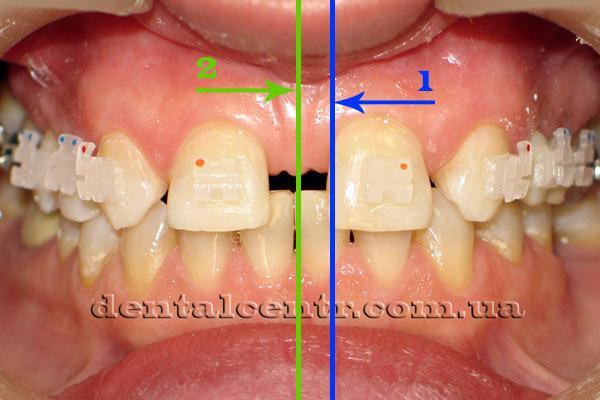 Фото зубов. На фото обозначены средняя линия для ортодонта