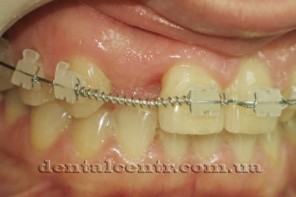 Фото зубов с установленной брекет системой