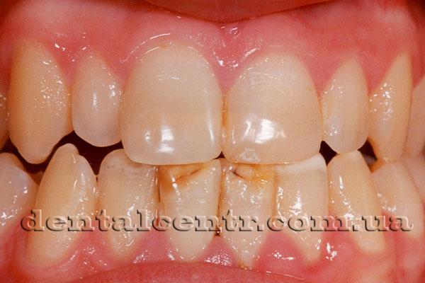 зубные виниры в ярославле