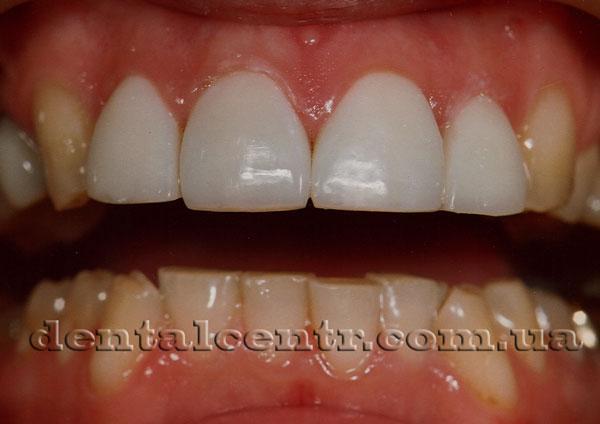 как выглядят виниры на зубах