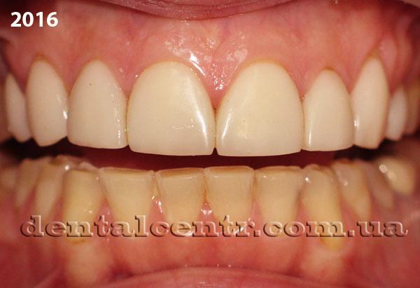 зубные виниры для нижней челюсти купить