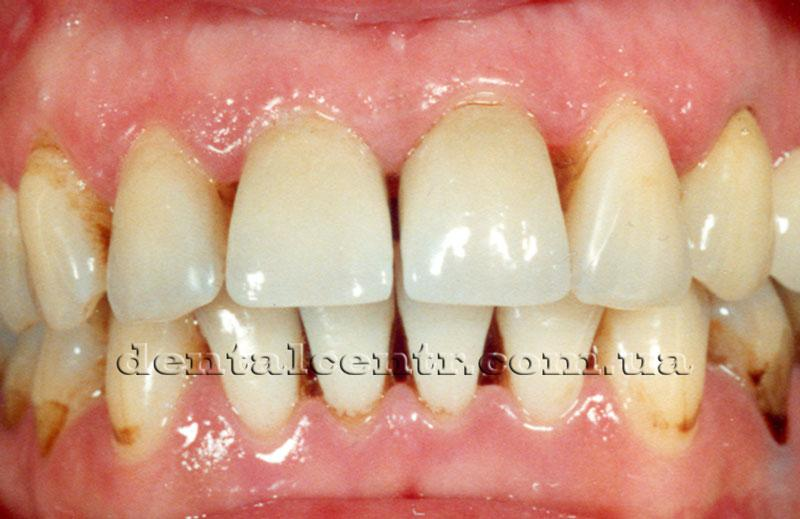 Фотография зубов начинающего курильщика