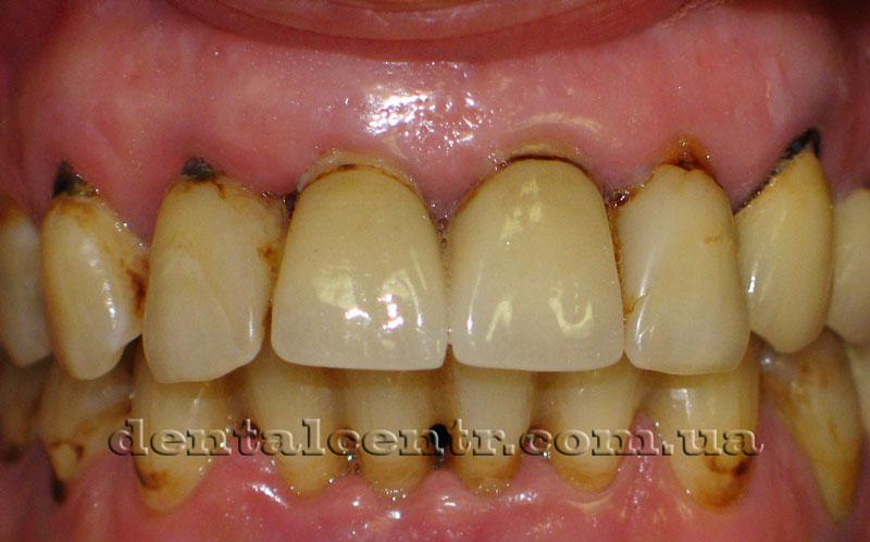 Зубы курильщика, фото