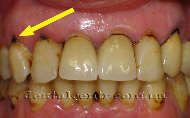 Голые корни зубов и воспалённый дёсенный край фото