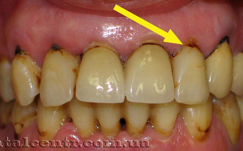 Старение пломбировочного материала на зубах курильщика, фото