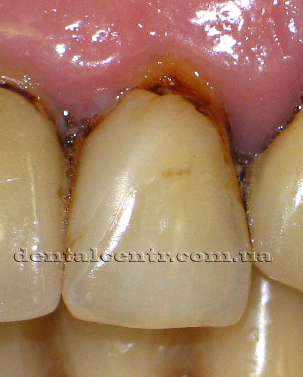 Новые кариозные поражения зубов, фото