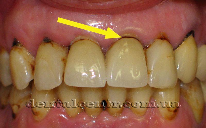 Сложности в  лечении зубов курильщика фото
