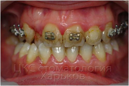 Причины пародонтита − плохая гигиена и неверное ортодонтическое лечение