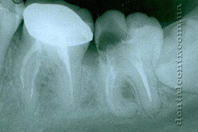 Рентгенограмма периодонтит зуба