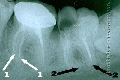 рентгенограмма осложнение лечение каналов <p align=