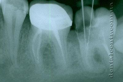 рентгенограмма не запломбированных участков