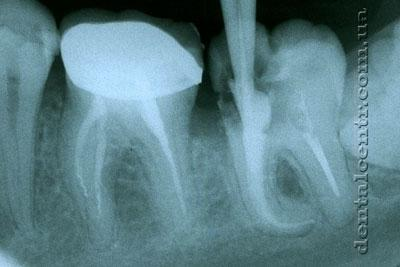 Рентгенограмма не пломбированных каналов