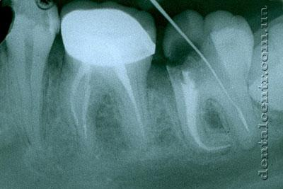 рентгенограмма проблемных участков каналов