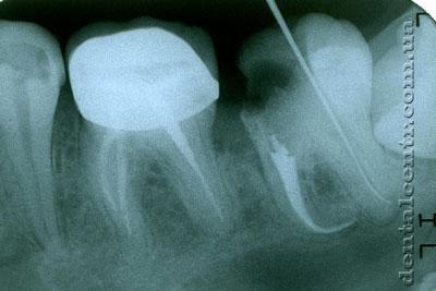 рентгенограмма качественная пломбировка изогнутых каналов