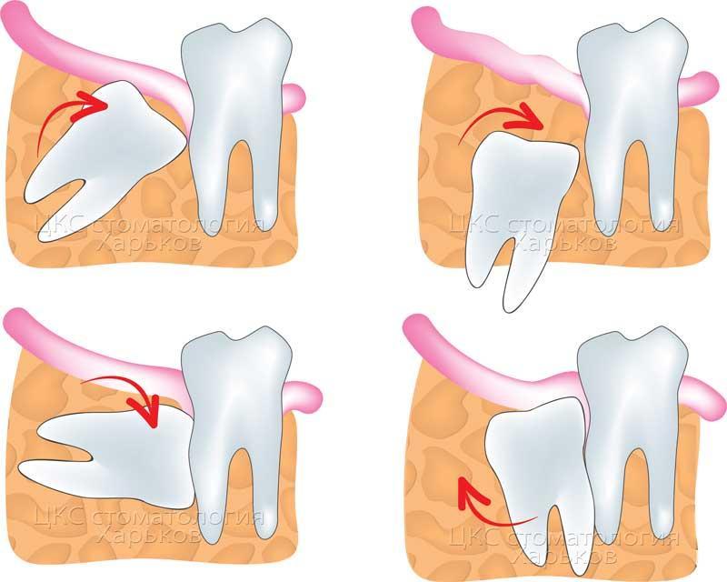 Причина трудного прорезывания зуба мудрости