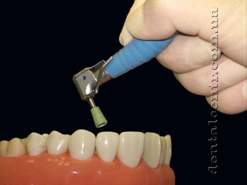 Что такое полировка пломбы на зубе