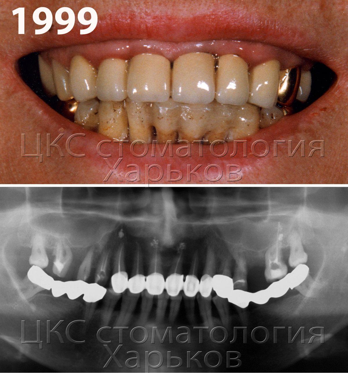 Генерализованный пародонтит, шинирование зубов