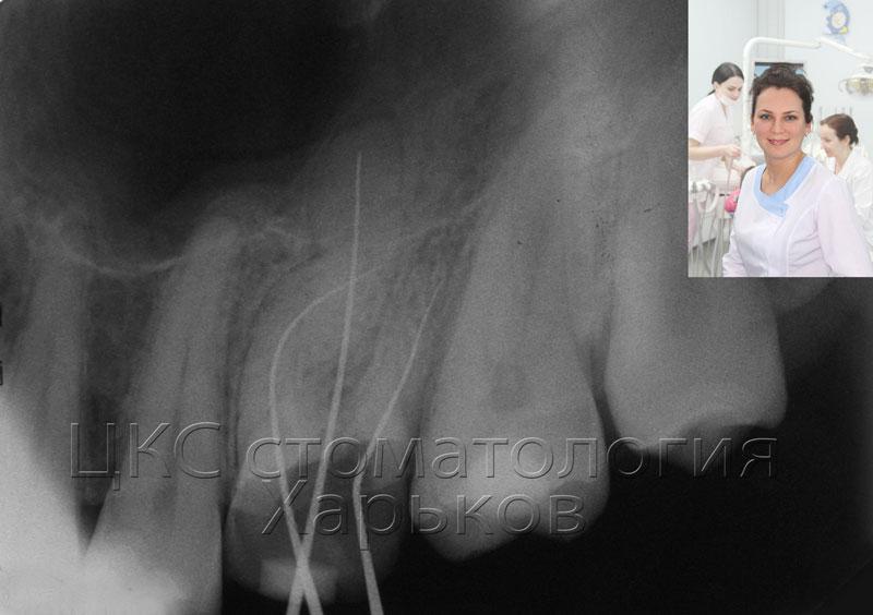 изогнутые каналы зуба фото