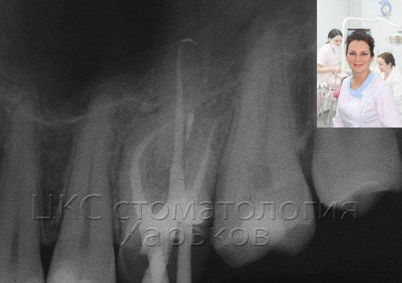 запломбированные каналы рентген