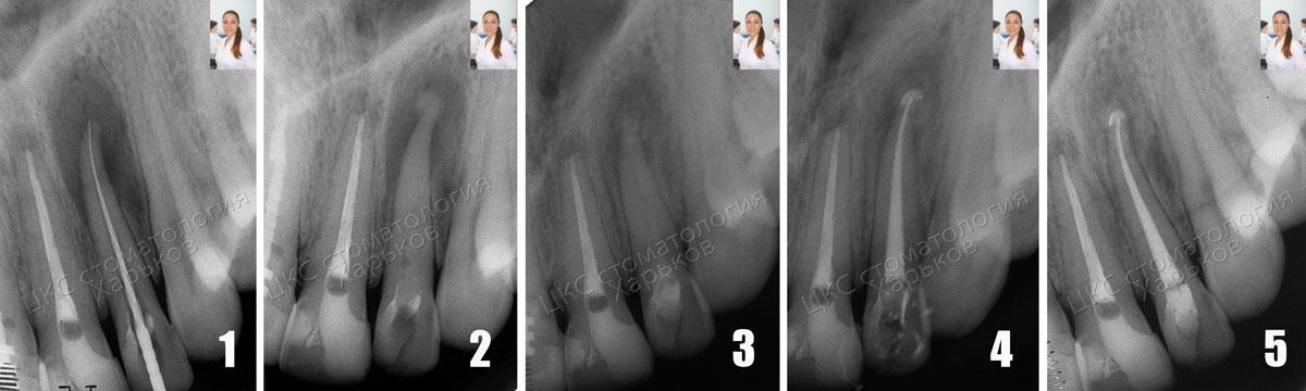 этапы лечение гранулемы рентгенограмма