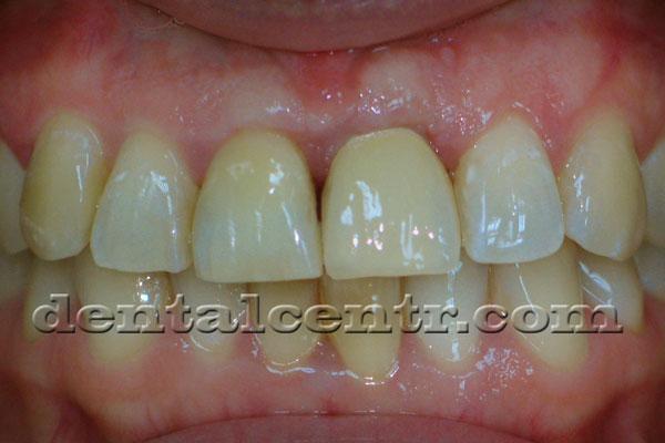 Фиксирована постоянная коронка при двухэтапной зубной имплантации
