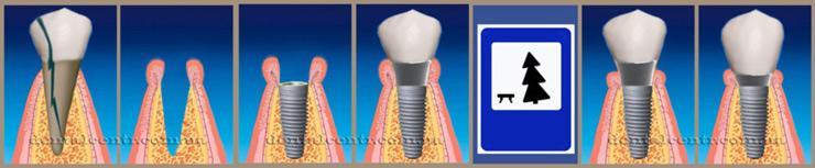 Схема в пиктограммах: немедленная, одноэтапная зубная имплантация. Пиктограммы, рисунок